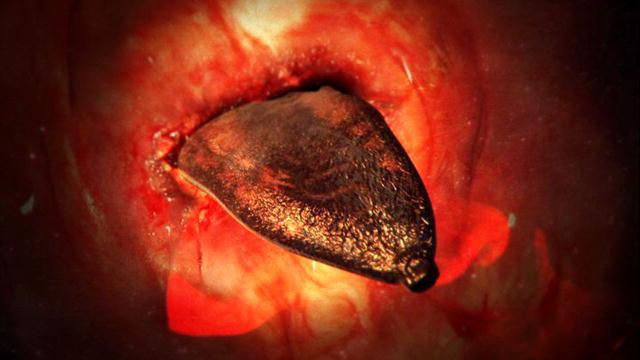 paragonimus kellicotti worm - photo #38