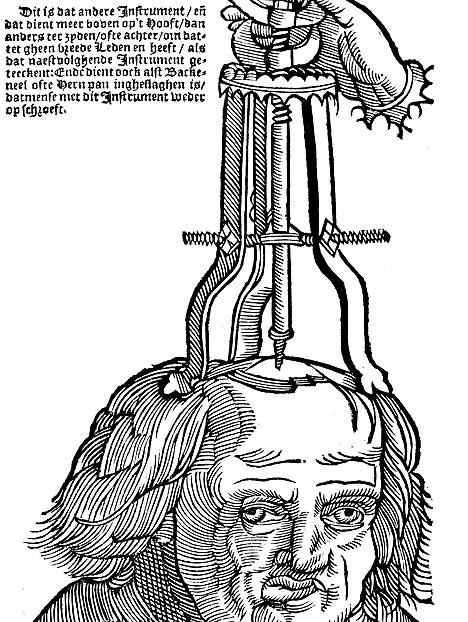 """Trepanning, also known as """"trephination,"""" is often alleged to be the oldest surgery performed by humans. While we can't know this for sure, it's obvious from archaeological evidence that this ritual was undertaken long before anesthetics, long before neuroscience or germ theory, and certainly long before surgical sterilization standards. In fact, trepanning goes back to the Stone Age. Mesolithic to Neolithic skeletons found in France and the Ukraine show holes and indentations in the skulls that are consistent with trepanning -- what's more, many of the holes show signs of healing and smoothing over time, which indicates that people often survived the procedure. This helpful how-to illustration comes from the 13th century."""