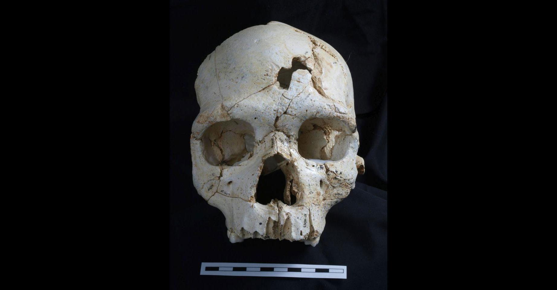 Cranium 17 Bone Traumatic Fractures