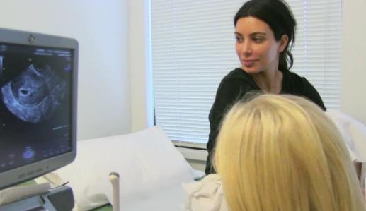 Kim Kardashian looks at an ultrasound with a tech