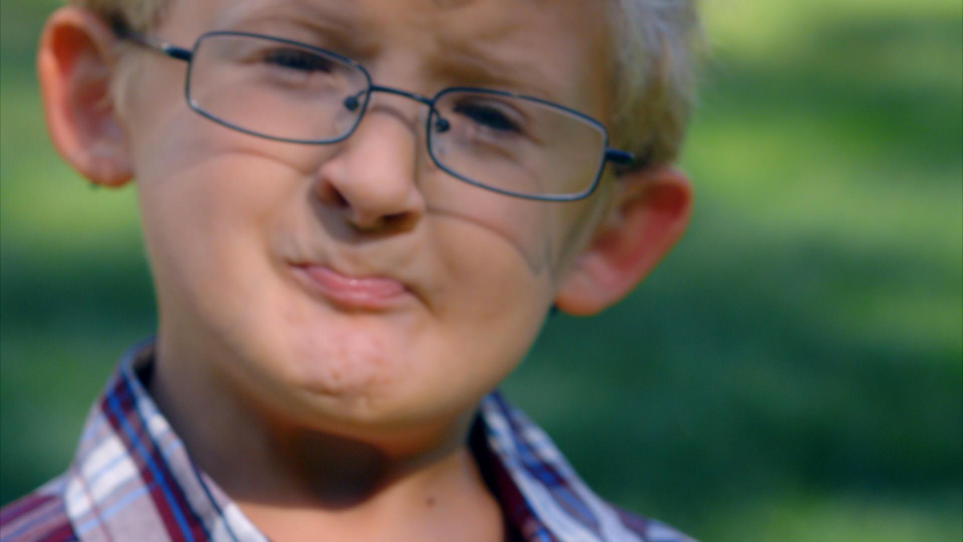 Фото детей с синдромом ларсен