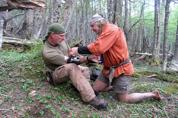 Cody uses moss and wilderness medical skills to dress Dave's wound that was first cauterized with a black powder burn.
