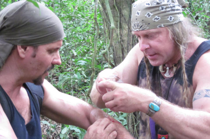 Cody uses ant pinchers to seal Joe's wound on their survival mission in Nicaragua.