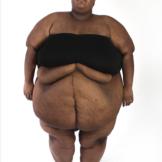 My 600 lb Life 511 Tanisha after