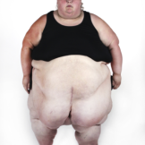 My 600 lb Life 508 Before