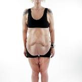 Skin Tight 208 - Annette before