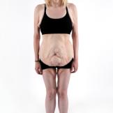 Skin  Tight 207 - Sarah Before