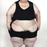 My 600 lb Life 506 Diana before