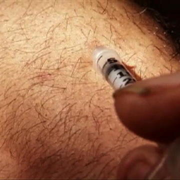 Man Injects Self With Snake Venom