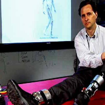 Power Prosthetics