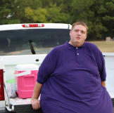 A few months after his surgery, James is down to 376 pounds and has had more than 70 pounds of skin removed from his stomach. It's a fresh start for him to live life in a smaller body.