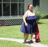 In the first full year after gastric bypass surgery, Tara lost 278 pou