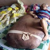 Hai's rare condition is called neurofibromatosis.
